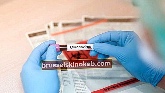 Coronavirus-tester: ta reda på hur mycket de kostar och hur de fungerar