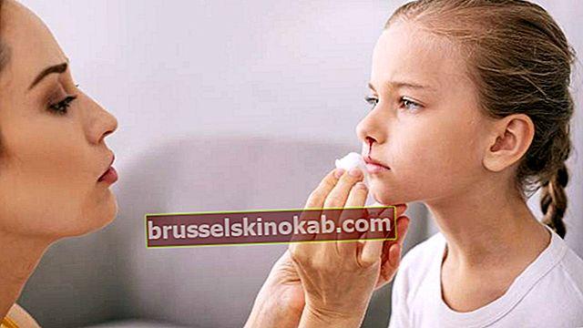 Nasal blødning: 7 enkle handlinger som kan hjelpe