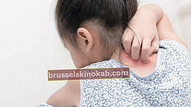 דע את הטיפולים חסרי השוטים למלחמה בפסוריאזיס