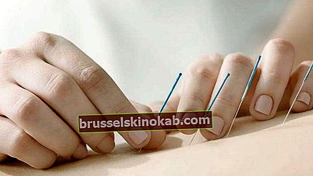 Oppdag fordelene med akupunktur for kroppen din