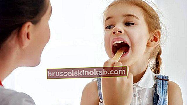 Tonsillit: orsaker, symtom och behandlingar